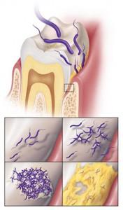 歯周病の原因はバイオフィルム