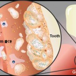 歯周病とはどんな病気か?